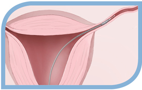 Diagram of Placing Inserts into the Fallopian Tube